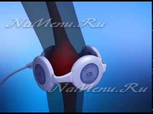 Прибор импульс для лечения суставов цена - Снежана Максимова